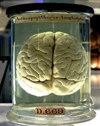 Brain in a Jar