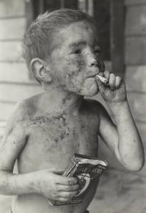 Famous 1960s photo from Appalachia. The chronic problems didn't start in 2008...